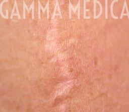 Cicatrice Scleroatrofica