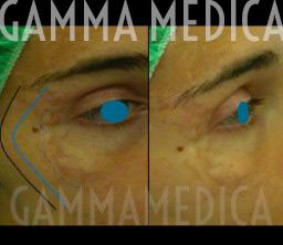Cicatrice perioculare pre-post