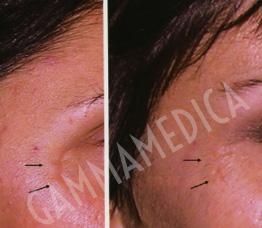 Lipofilling cicatrici pre-post