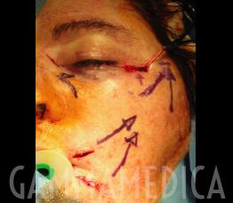 Chirurgia paralisi del facciale