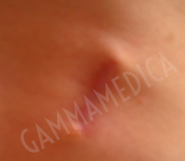 Cicatrice addome