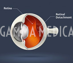 Distacco retinico