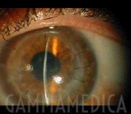 Rigetto di trapianto di cornea