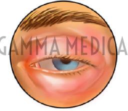 Cellulite Orbitaria