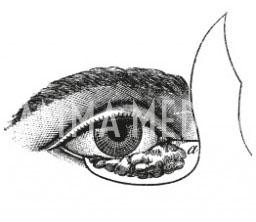 Lembo cutaneo