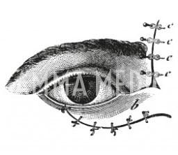 Plastica palpebrale
